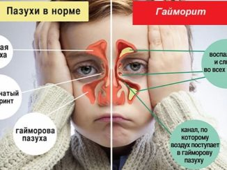 гайморит у детей симптомы